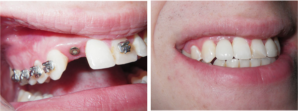 Before and After, Chemung Family Dental, Elmira NY